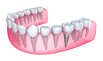 Dental Implants Andersonville, Edgewater, Chicago, IL